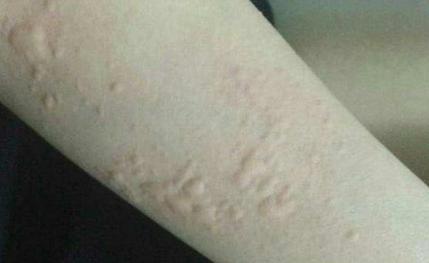 Post-Skin Allergy