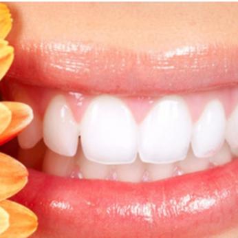 Post - Teeth